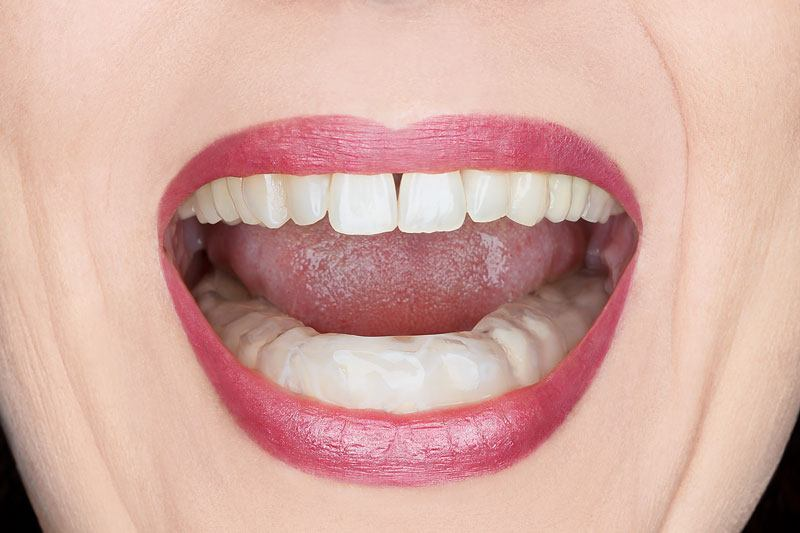 womans mouth open showing a night guard